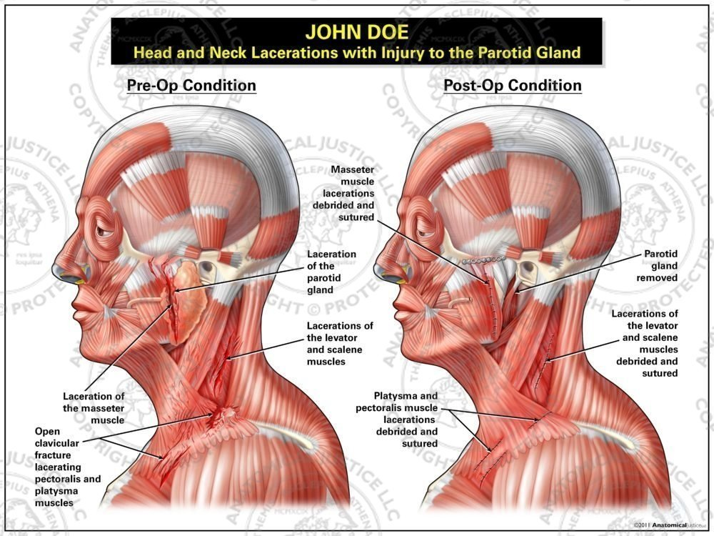 Head And Neck Lacerations With Injury To The Parotid Gland