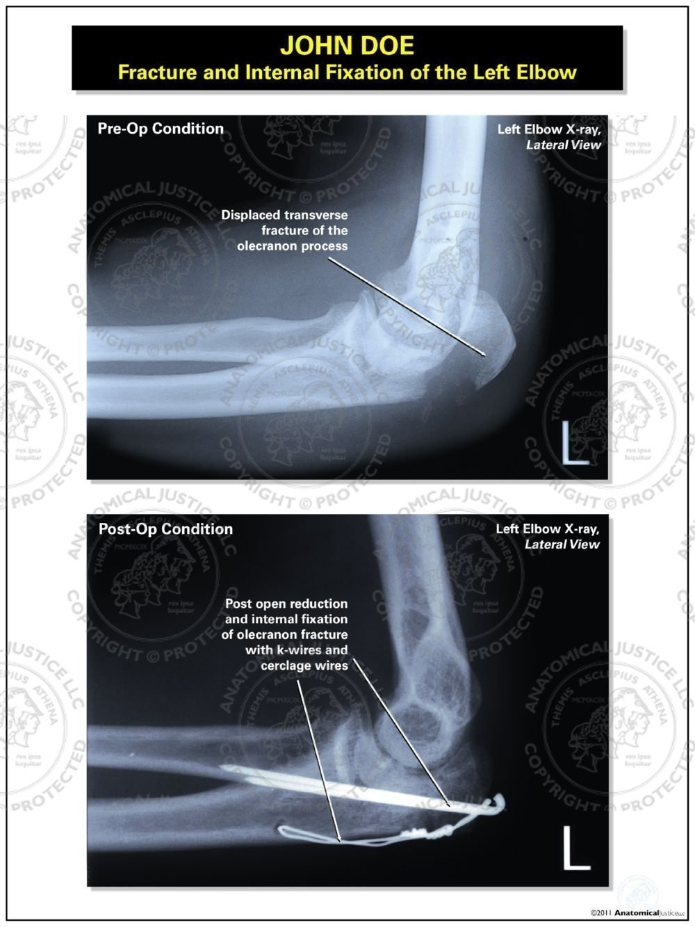 Fracture And Internal Fixation Of The Left Elbow