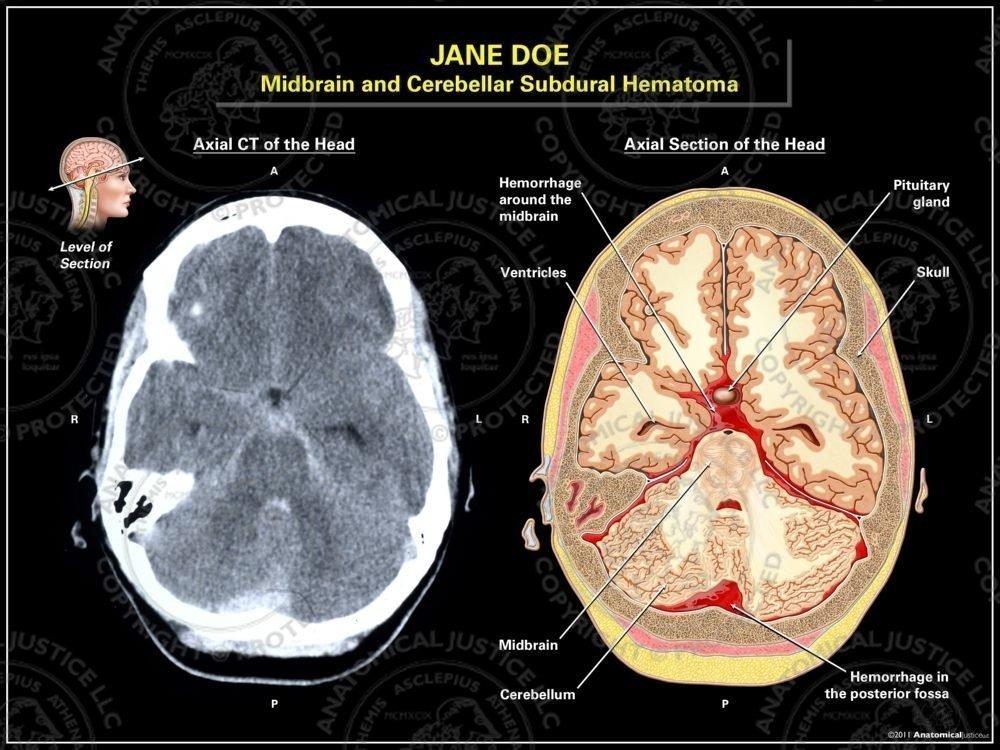 Midbrain And Cerebellar Subdural Hematoma Anatomical Justice