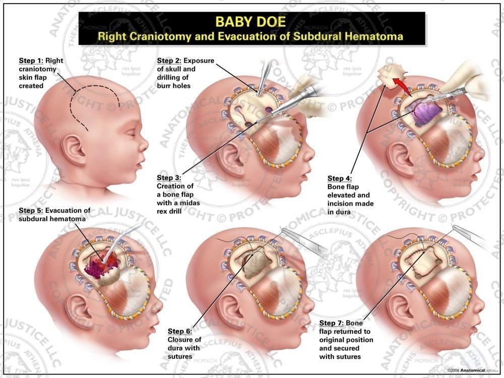 Right Craniotomy And Evacuation Of Subdural Hematoma Anatomical