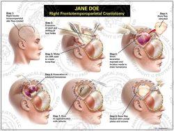 right frontotemporoparietal craniotomy with evacuation of a subdural hematoma