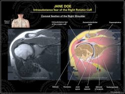 intrasubstance tear right rotater cuff