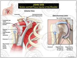 soft tissue injuries of the shoulder