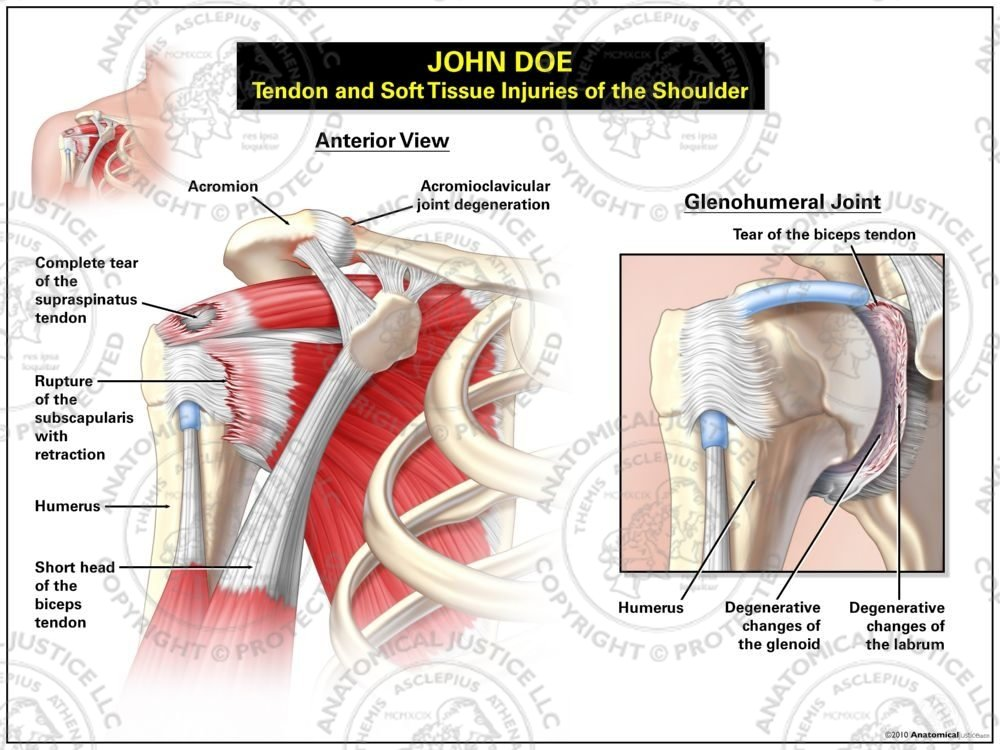 Tendon And Soft Tissue Injuries Of The Shoulder Anatomical Justice