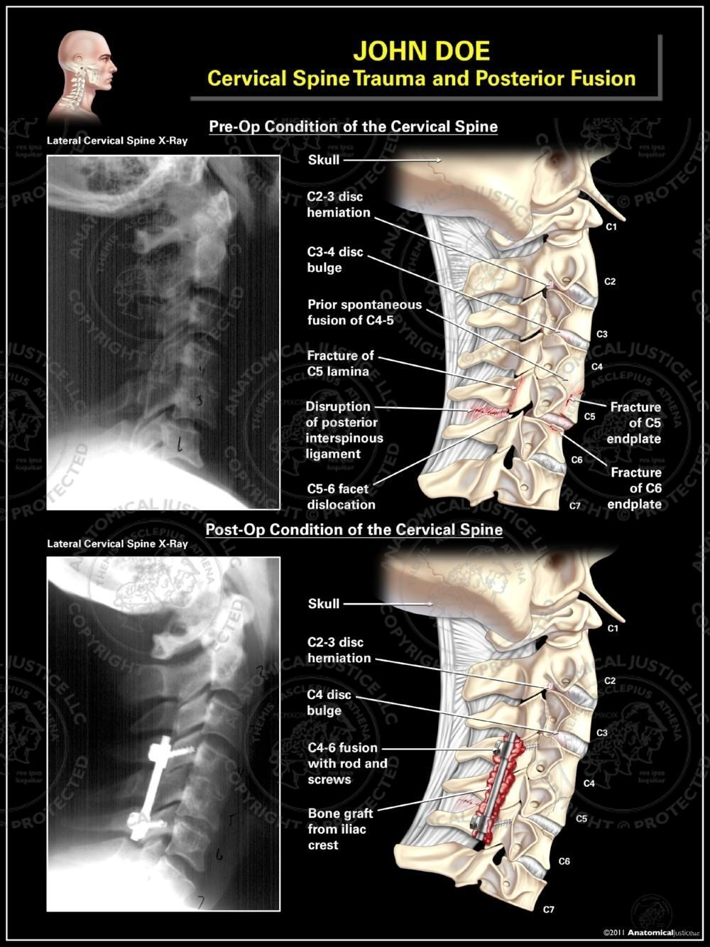 fusion vertebrae c2 c3