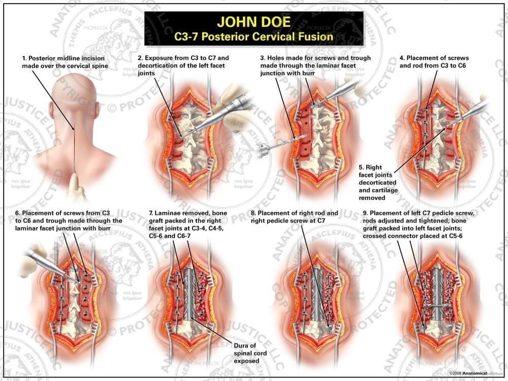 C3 7 Posterior Cervical Fusion Medical Illustrations Anatomical