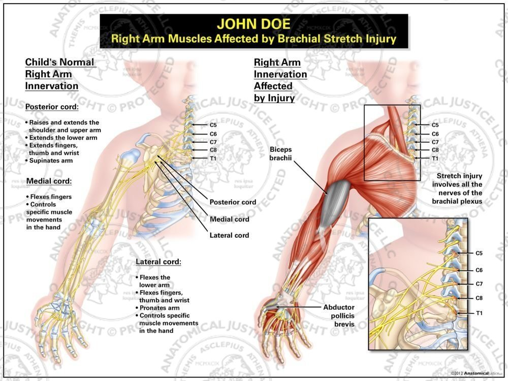 Right Arm Muscles Affected By Brachial Stretch Injury Anatomical