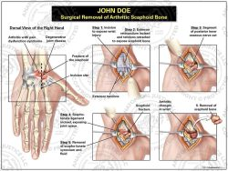 Surgical Removal of Arthritic Scaphoid Bone