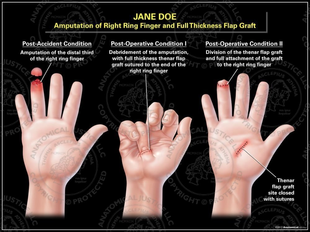 Amtion Of The Right Ring Finger And Full Thickness Flap Graft