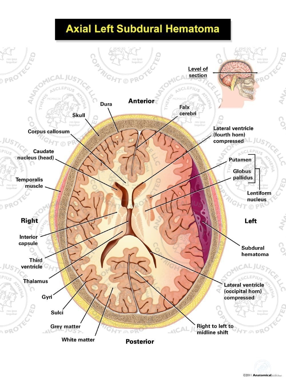 Left Axial Subdural Hematoma Anatomical Justice