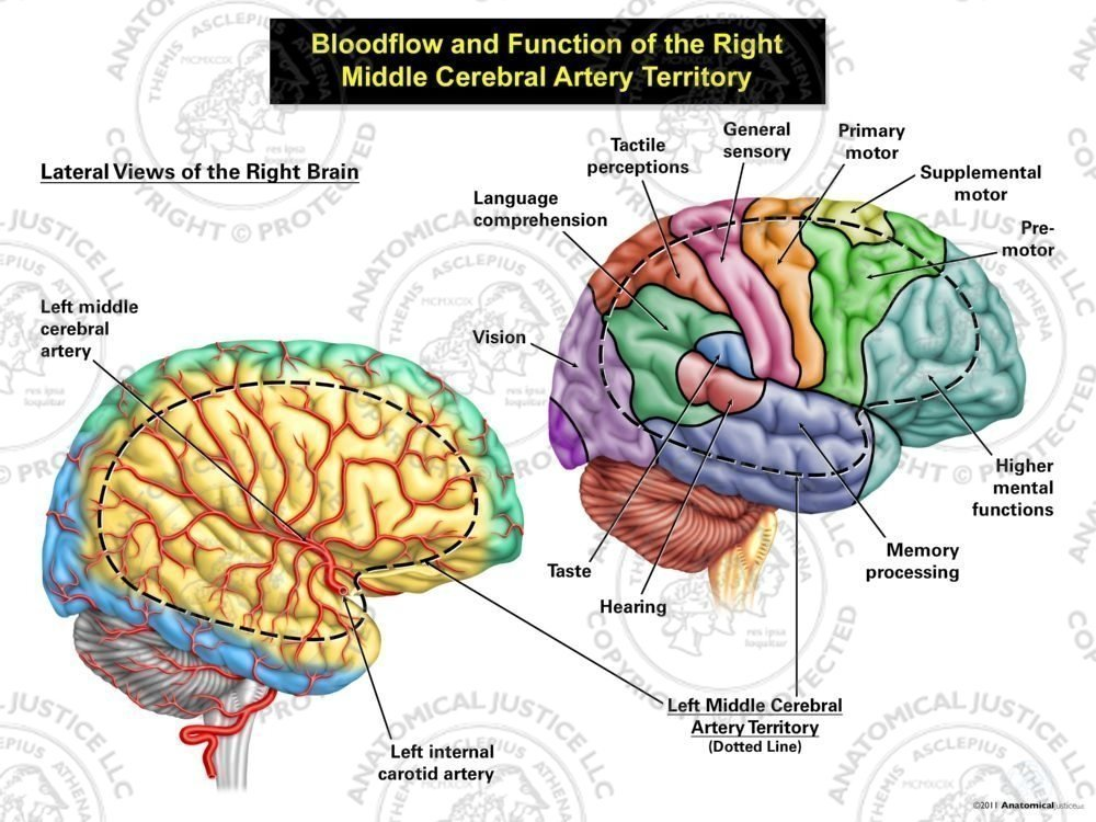 Bloodflow And Function Of The Right Middle Cerebral Artery Territory