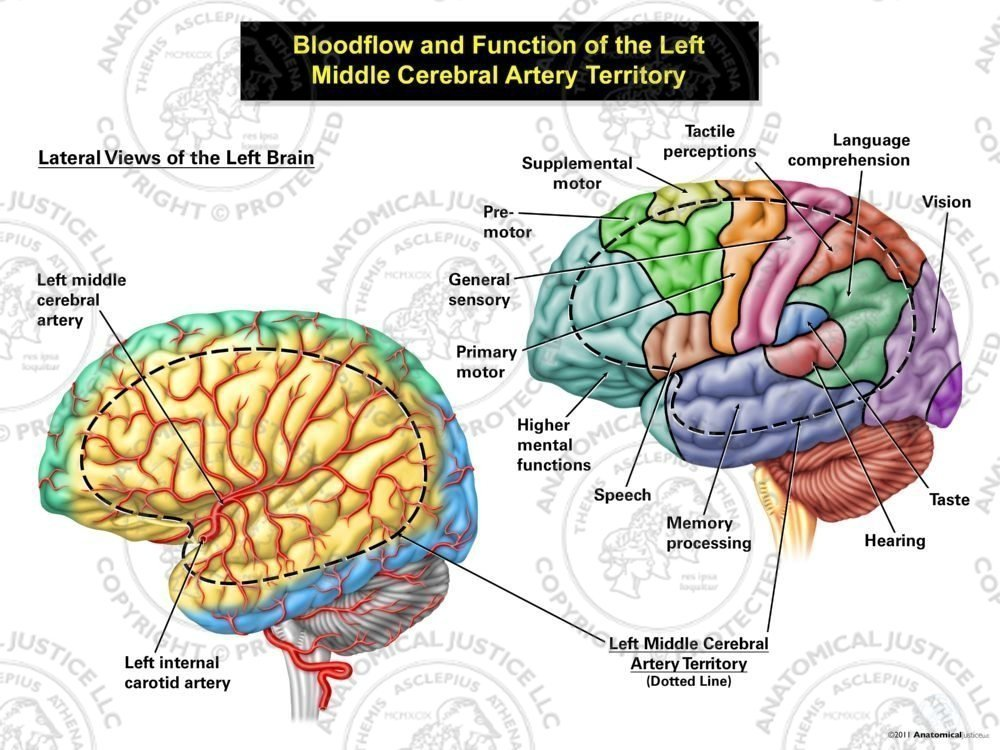 Bloodflow And Function Of The Left Middle Cerebral Artery Territory