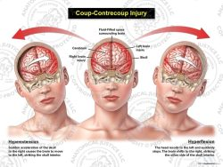 Female Anterior Coup - Contrecoup Injury