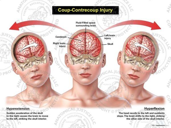 Female Anterior Coup - Contrecoup Injury