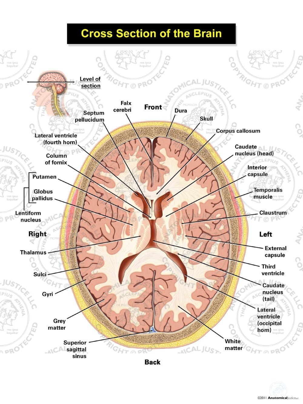 Cross Section Of The Brain Ventricular Level Anatomical Justice
