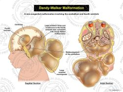 Dandy Walker Malformation