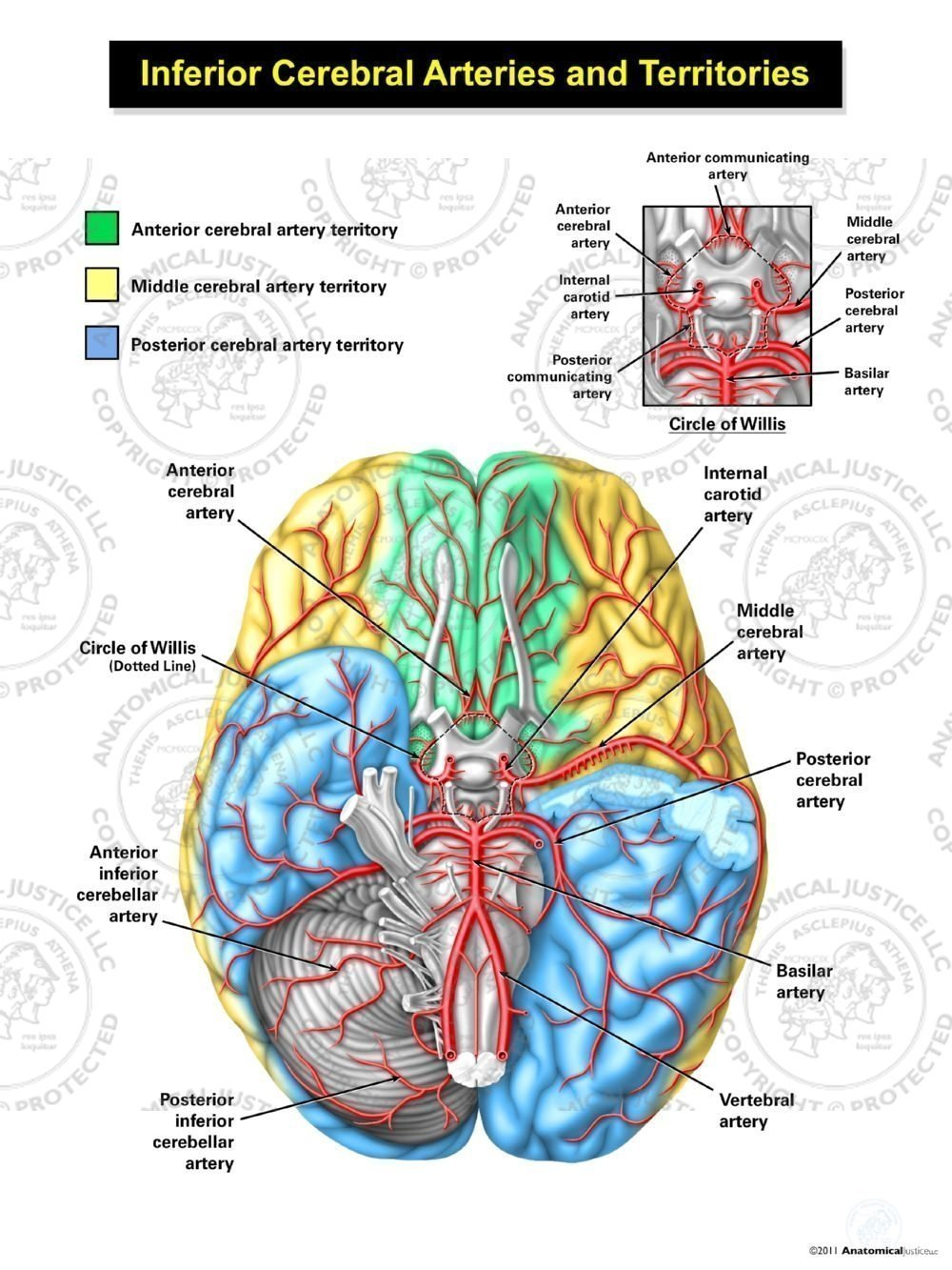 Middle Cerebral Artery Territory Tollebild