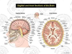 sagittal and axial sections of the brain
