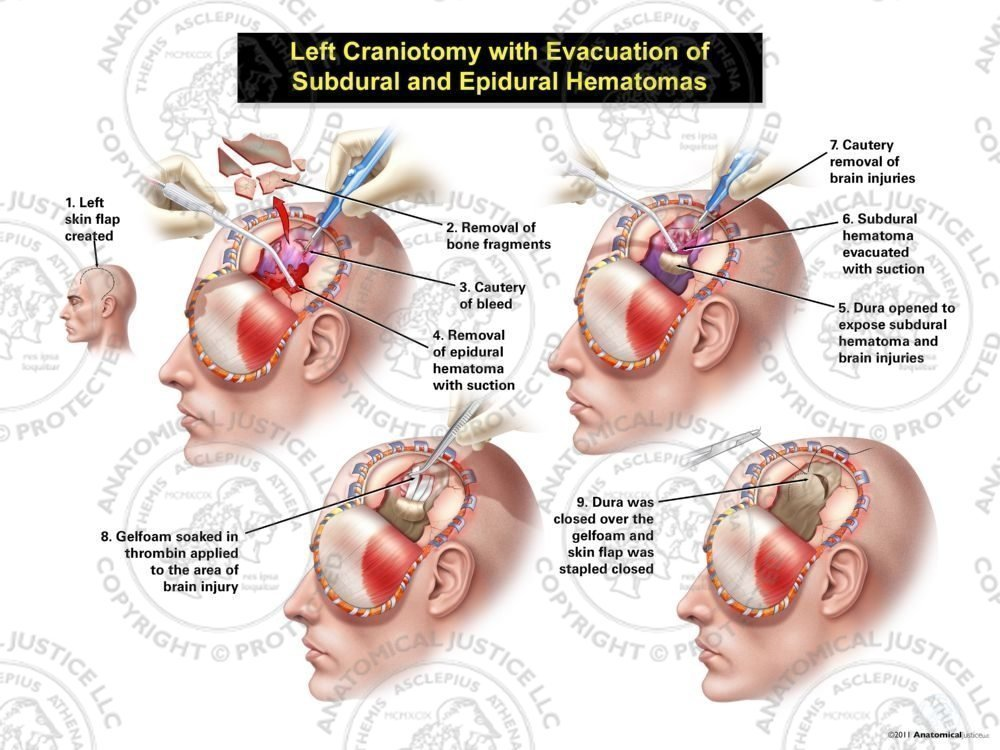 Male Left Craniotomy with Evacuation of Subdural and Epidural Hematomas