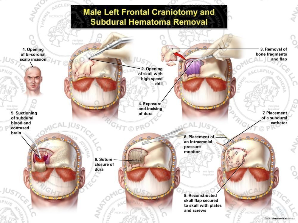 Male Right Frontal Craniotomy And Subdural Hematoma Removal