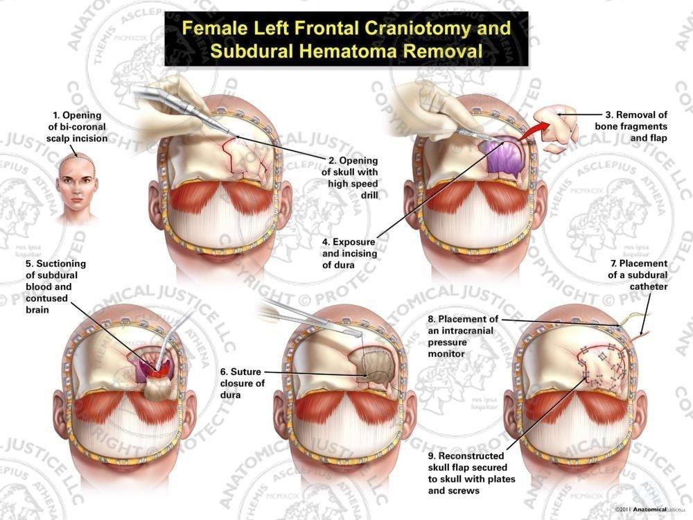 Female Left Frontal Craniotomy And Subdural Hematoma