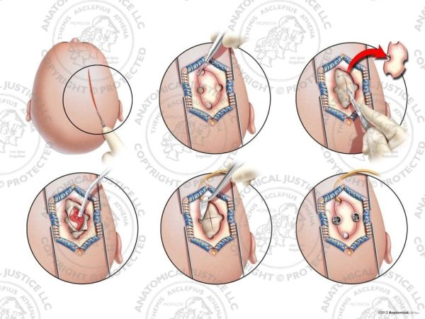 right frontoparietal craniotomy
