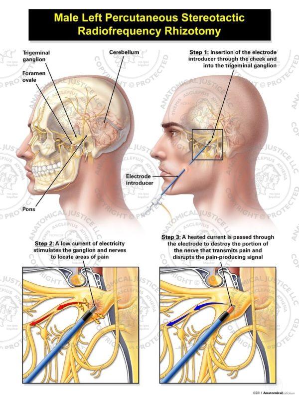 percutaneous stereotactic rhizotomy