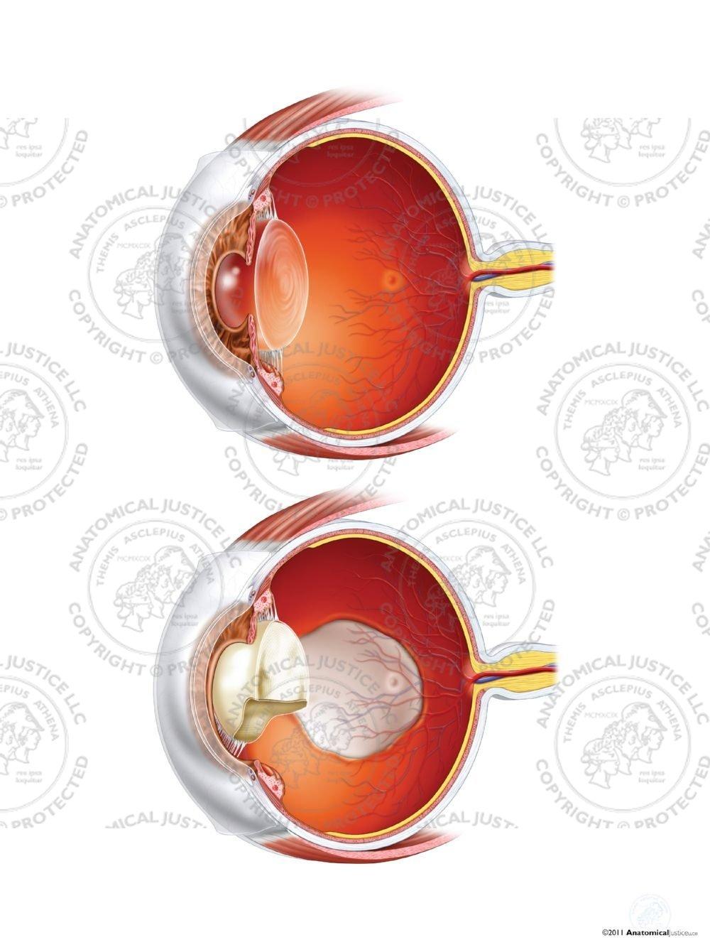 Normal Right Eye Anatomy Vs Coloboma Staphyloma And Cataract No