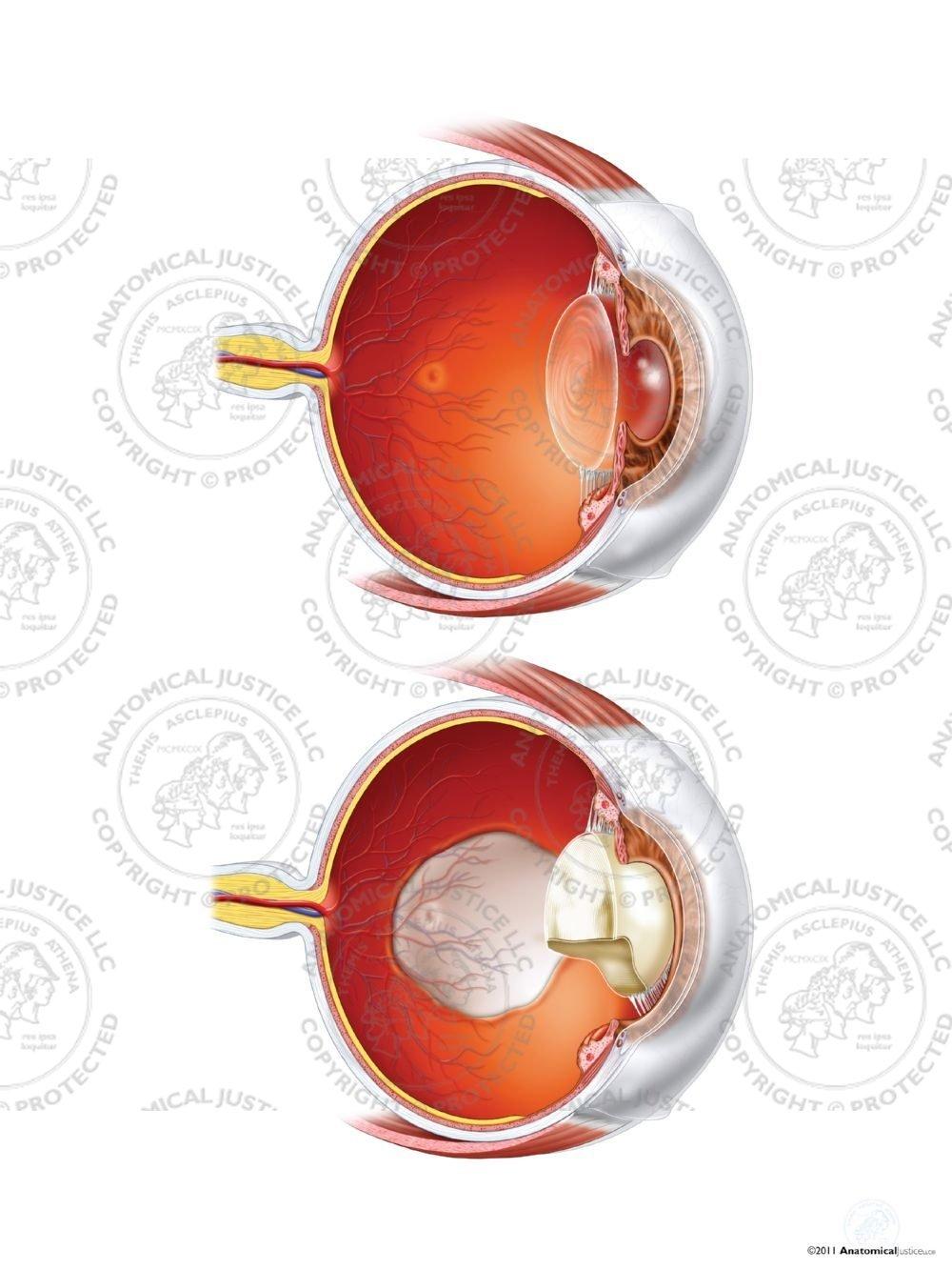 Normal Left Eye Anatomy Vs Coloboma Staphyloma And Cataract No