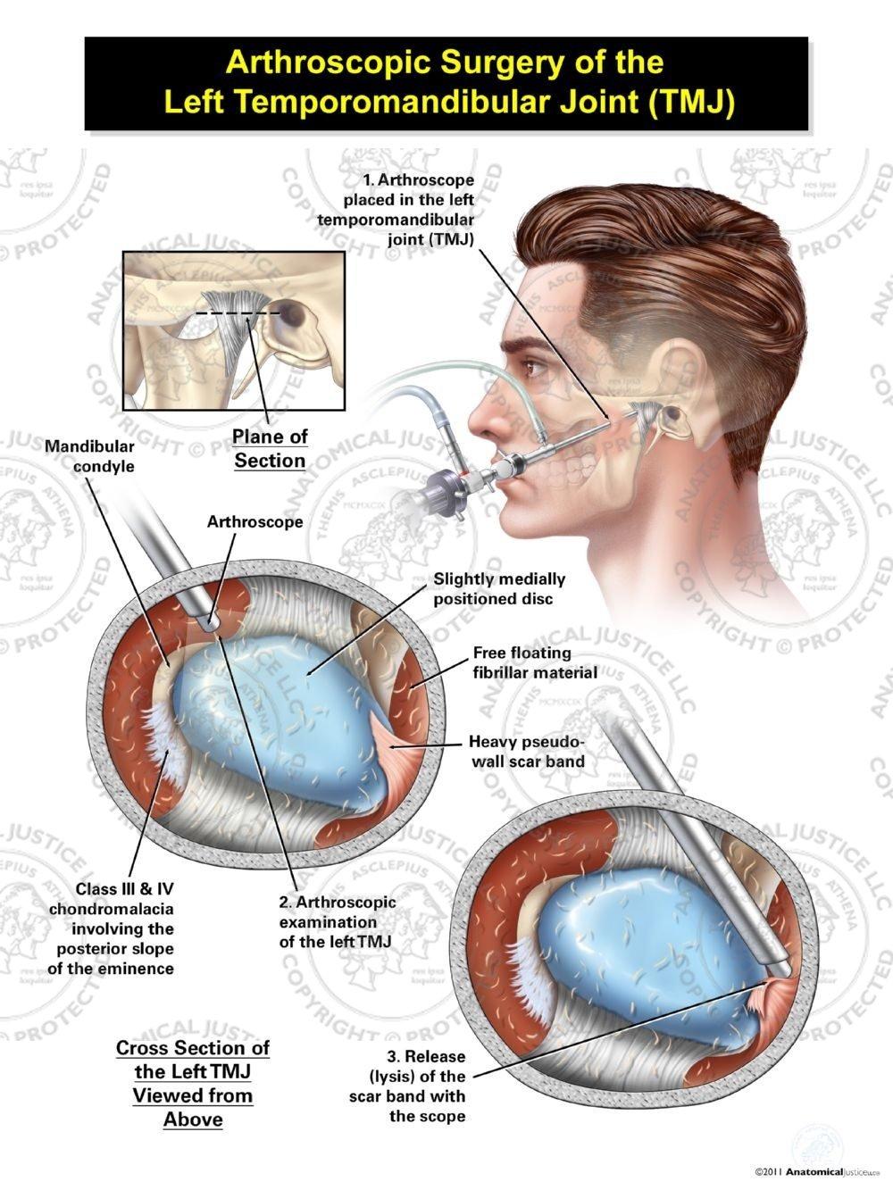 Male Arthroscopic Surgery Of The Left Temporomandibular Joint Tmj