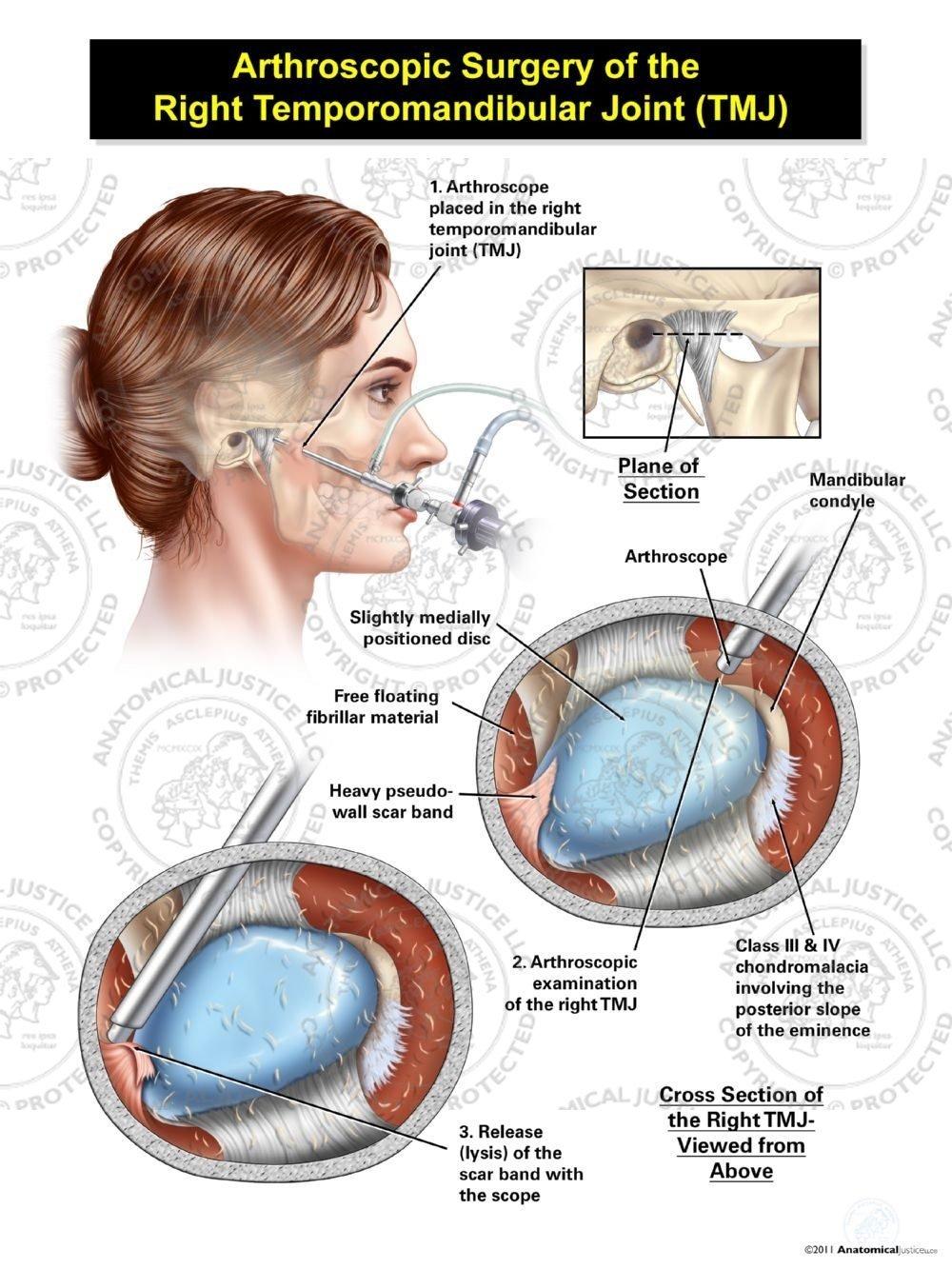 Female Arthroscopic Surgery Of The Right Temporomandibular Joint Tmj