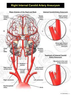 Right Internal Carotid Artery Aneurysm