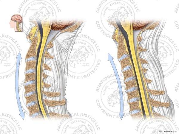 cervical lordosis