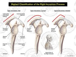 Bigliani Classification of the Right Acromion Process