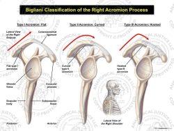 Bigliani Classification of the Right Acromion Process