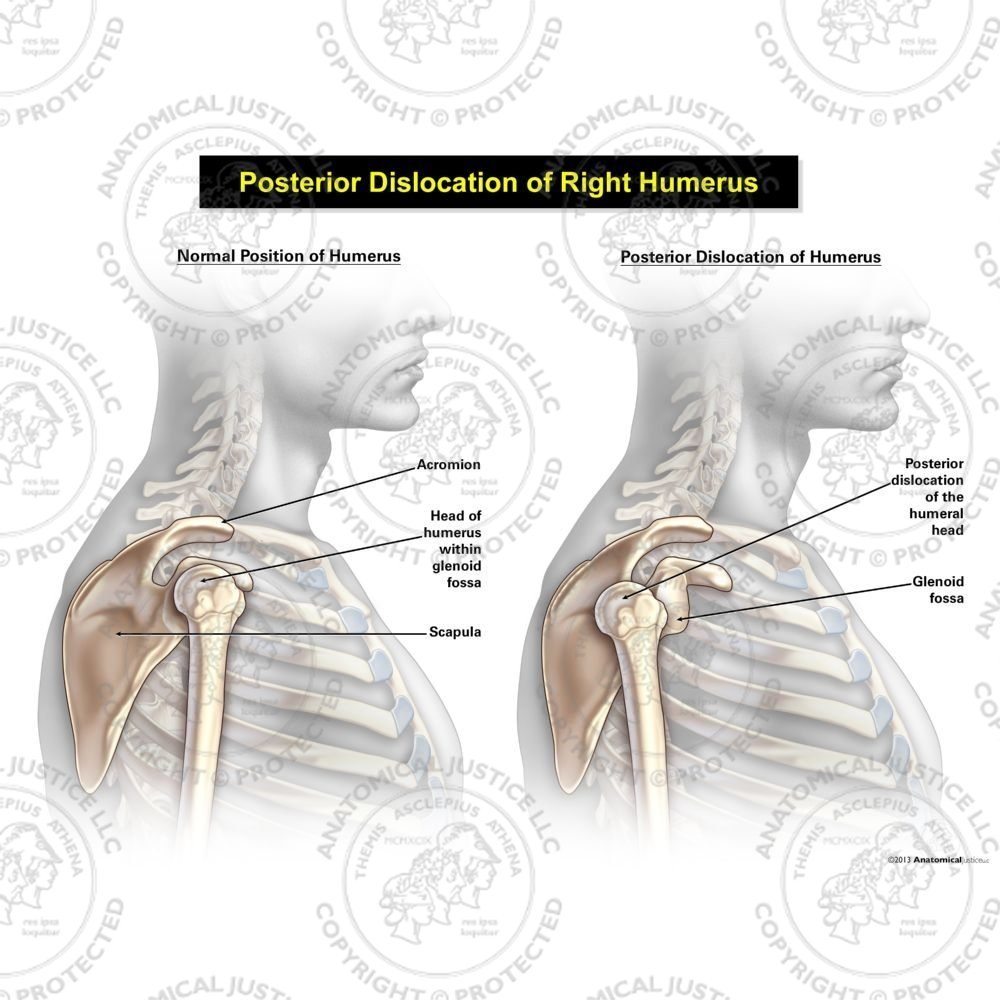 Male Posterior Dislocation Of The Right Humerus Anatomical Justice