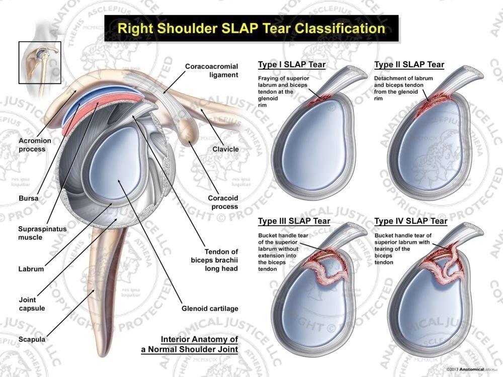 Diagram Slap Tear Diagram Full Version Hd Quality Tear Diagram Ddiagram23 Japanfest It
