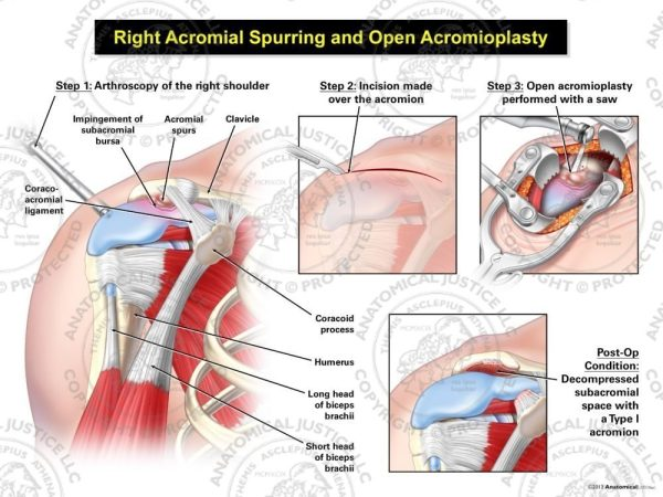 acromial spurring
