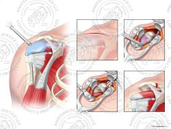 anterior anatomy of the shoulder under going a distal claviculectomy
