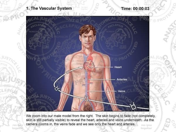 Coronary Artery Stent Storyboards