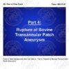 Tetralogy of Fallot & Transannular Patch Aneurysm Storyboards