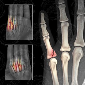 broken finger for comparison