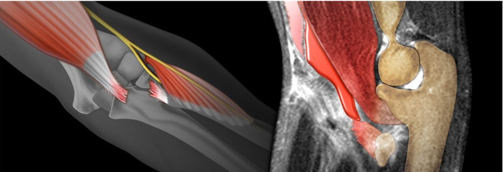 distal biceps rupture illustration alongside a radiological colorization of the same