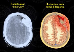 comparison of poor quality radiological films vs what can be illustrated when reports are referenced